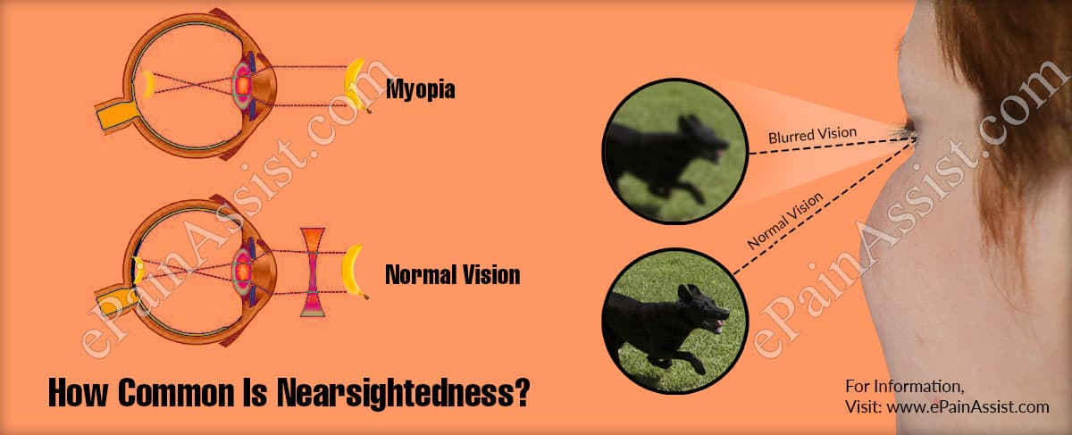How Common Is Nearsightedness Or It Is Rare Disease?