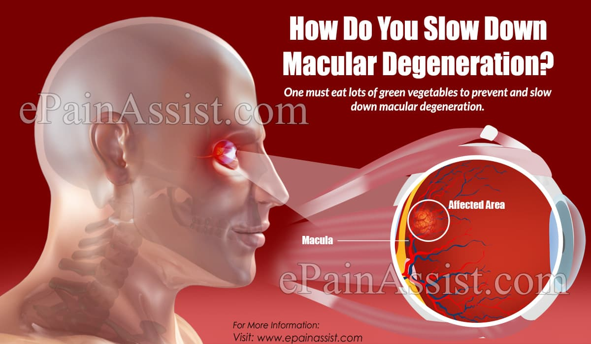 How Do You Slow Down Macular Degeneration?