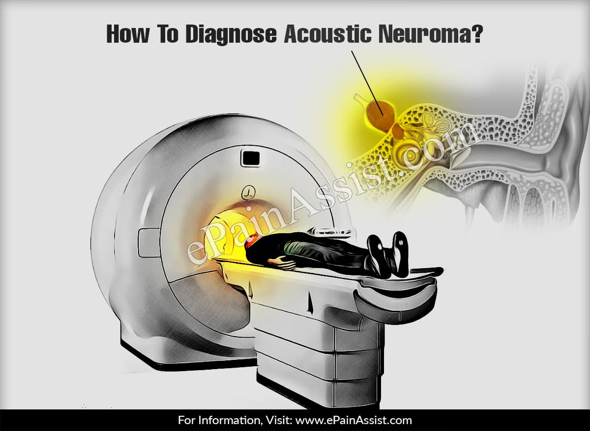 How To Diagnose Acoustic Neuroma?