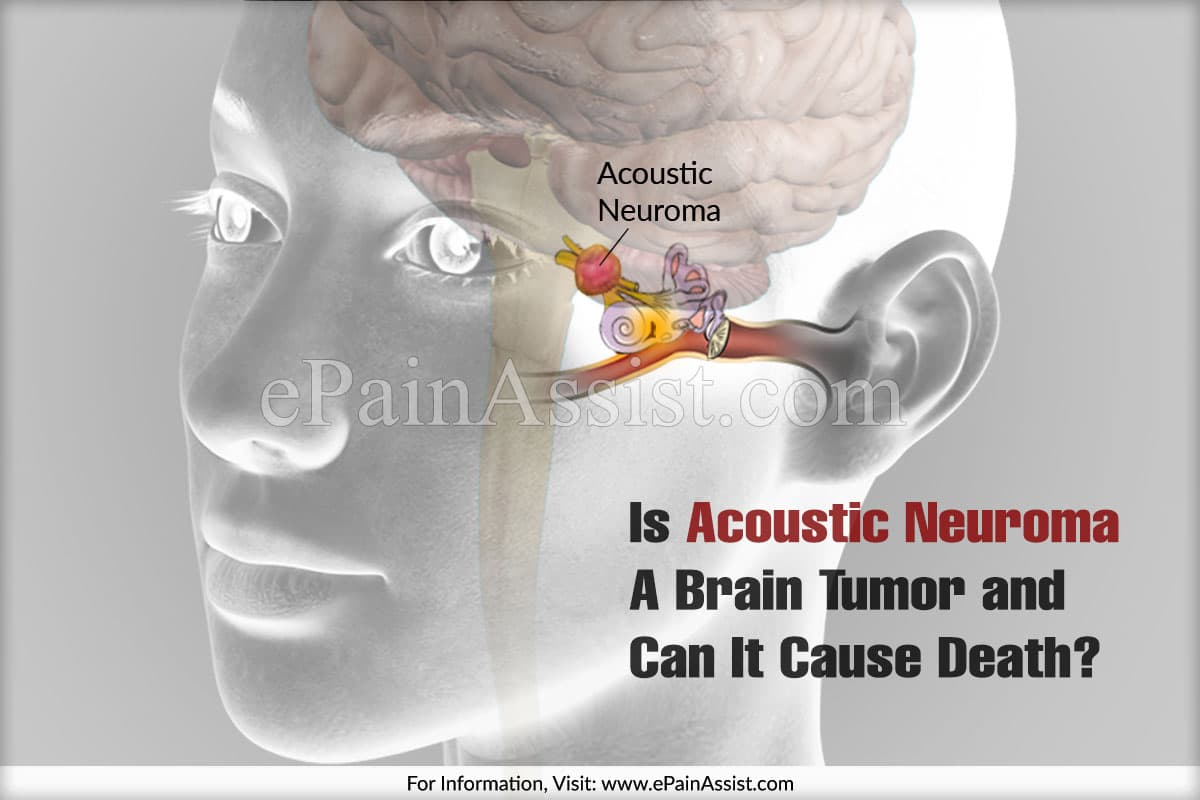 Is Acoustic Neuroma A Brain Tumor?
