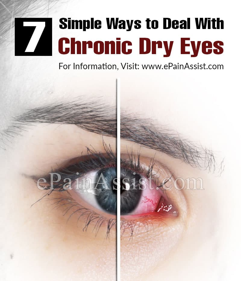 7 Simple Ways to Deal With Chronic Dry Eyes