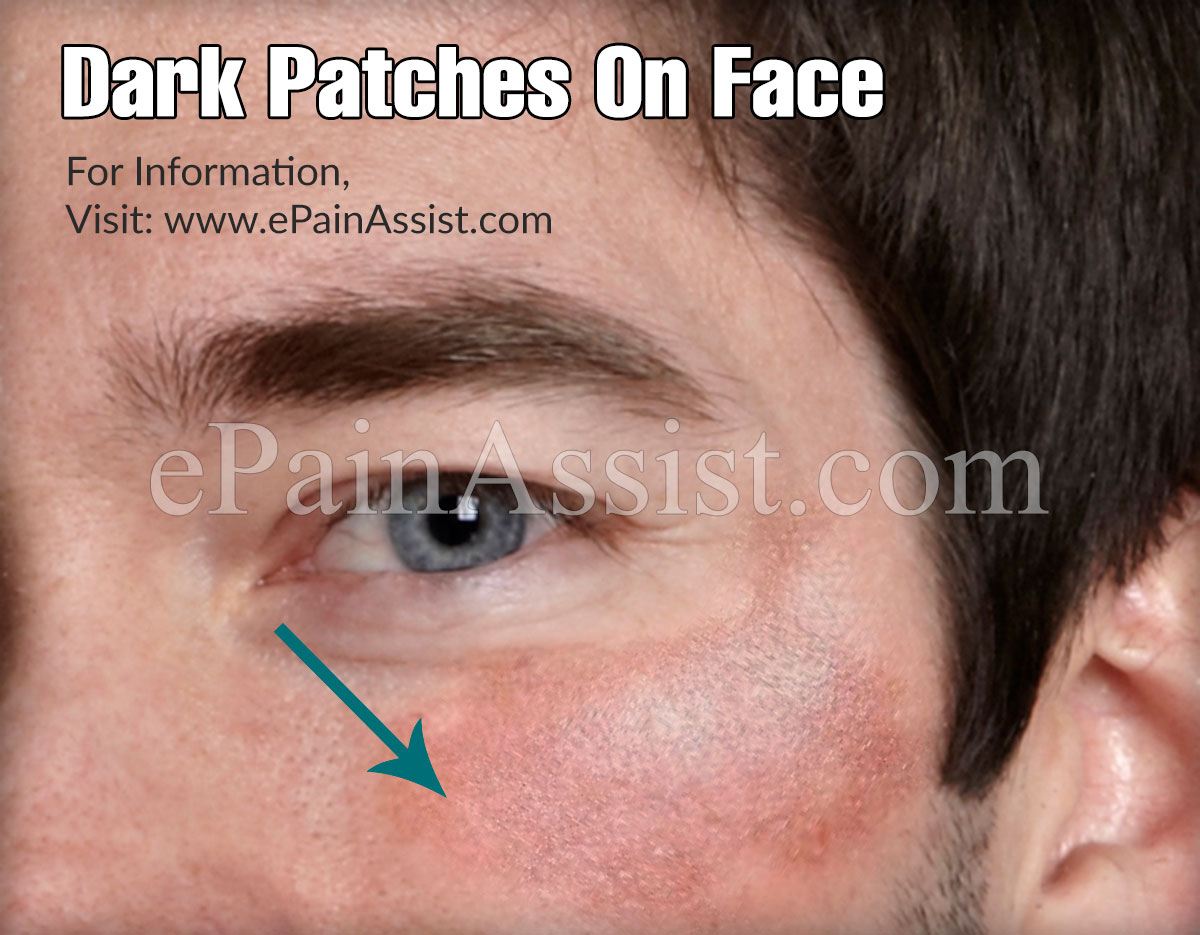 Dark Patches On Face