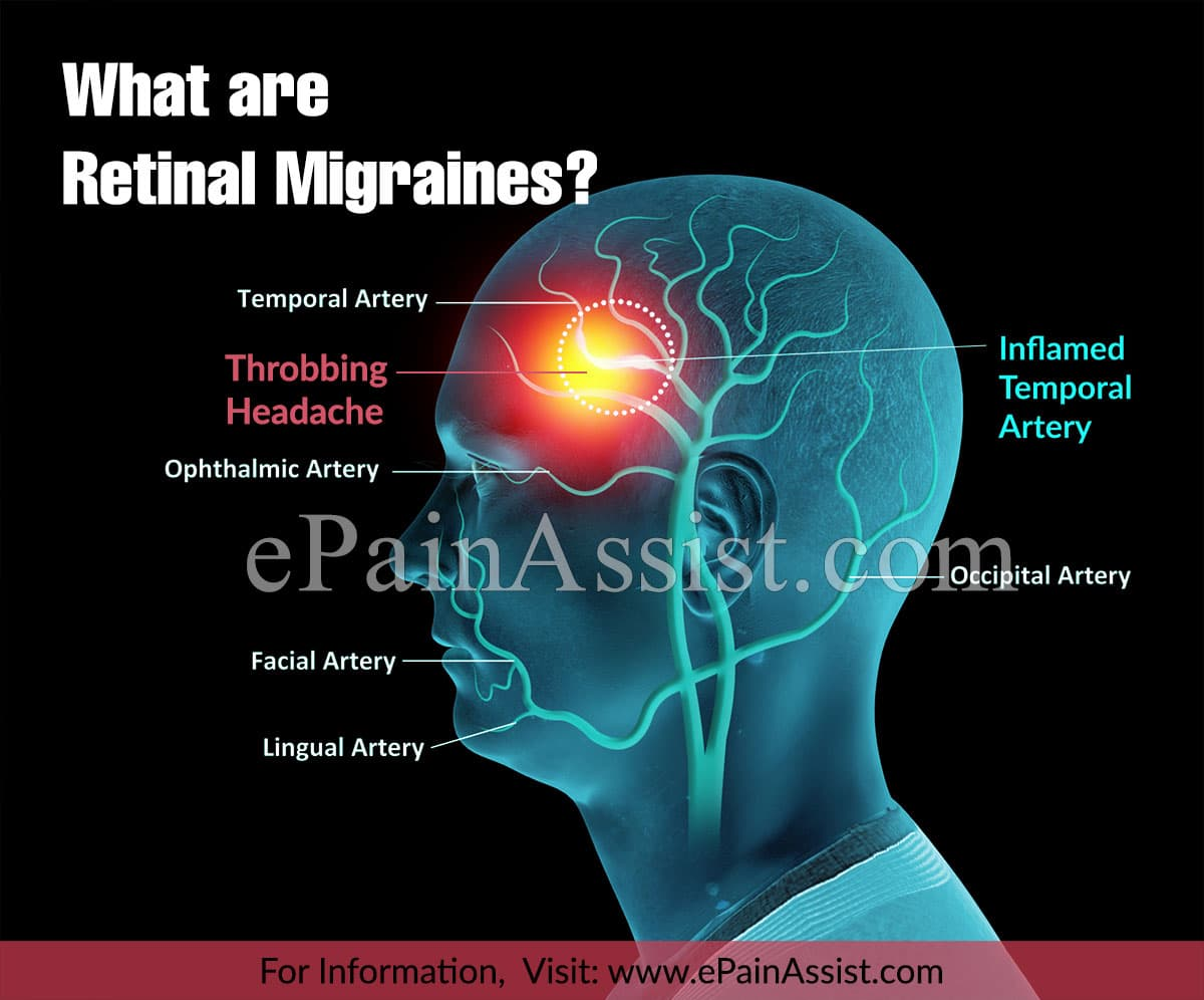 What are Retinal Migraines?