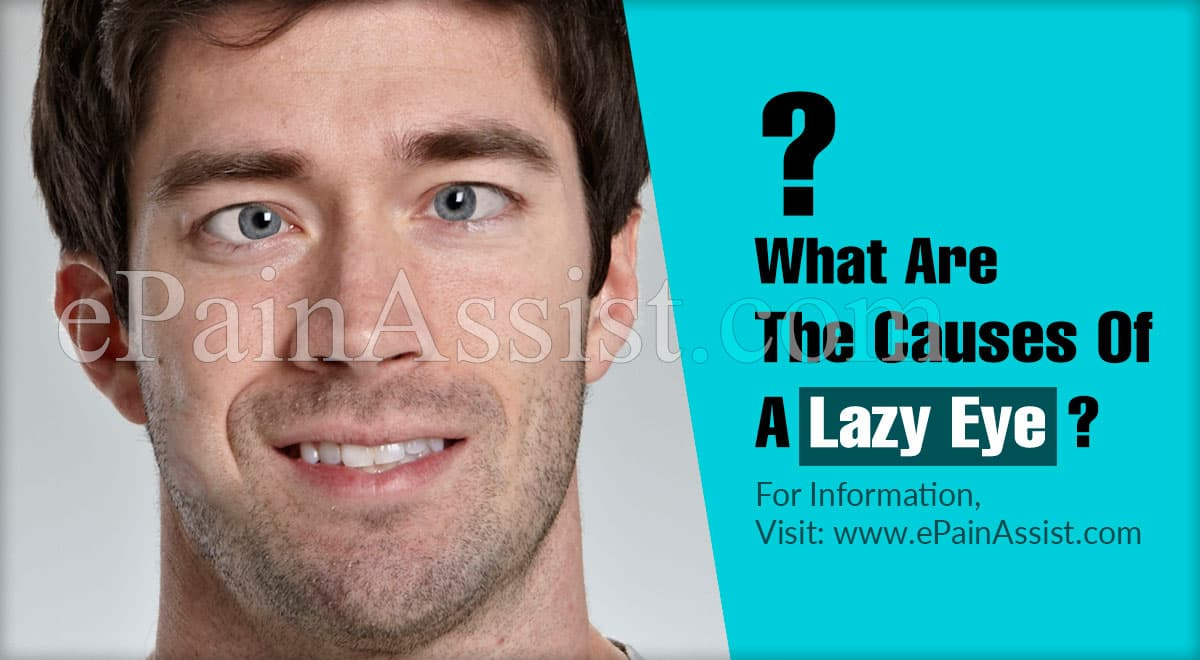 What Are The Causes Of A Lazy Eye?