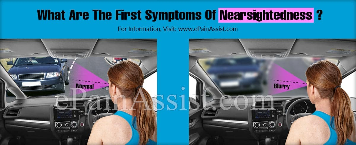 What Are The First Symptoms Of Nearsightedness?