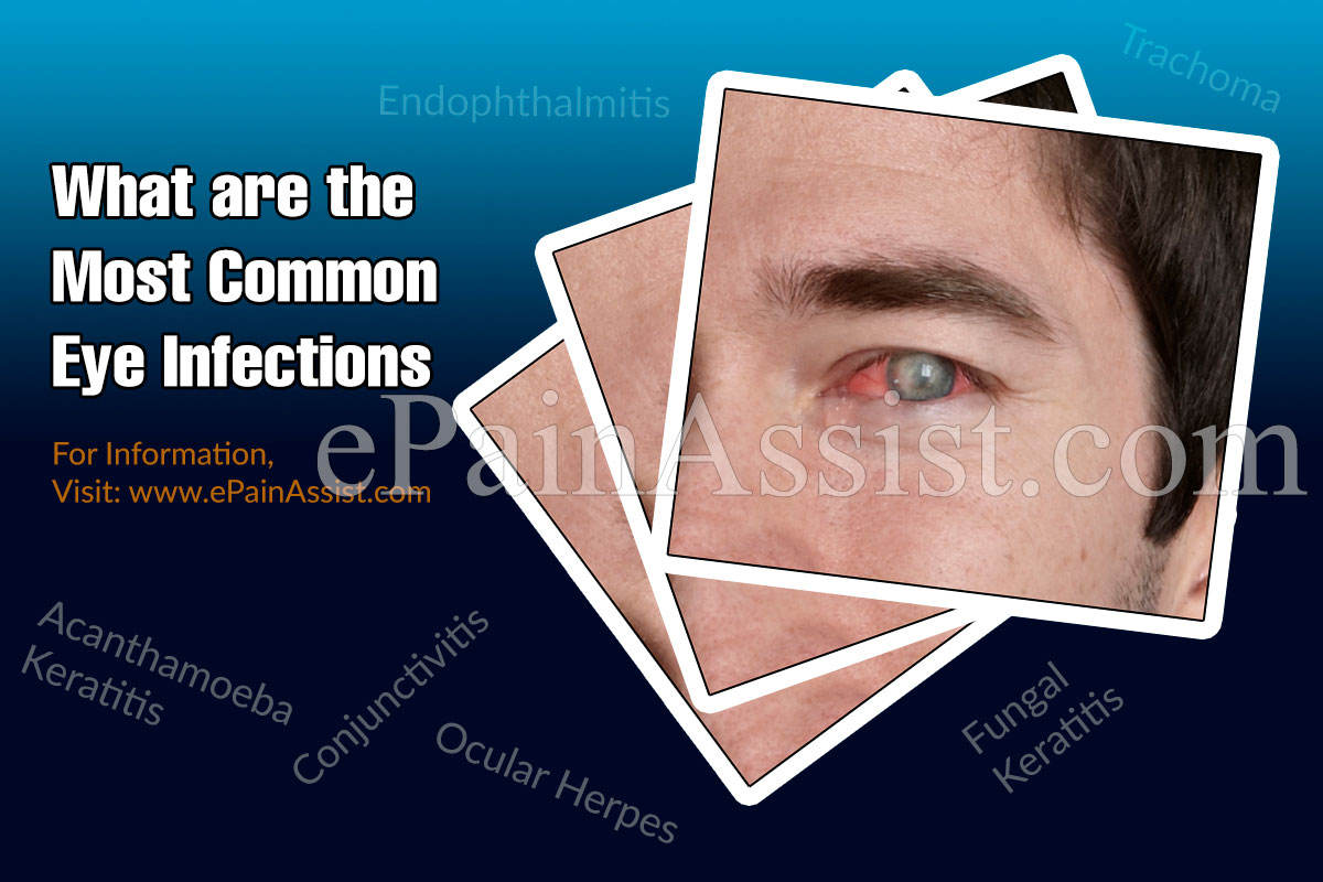What are the Symptoms of Eye Infection?