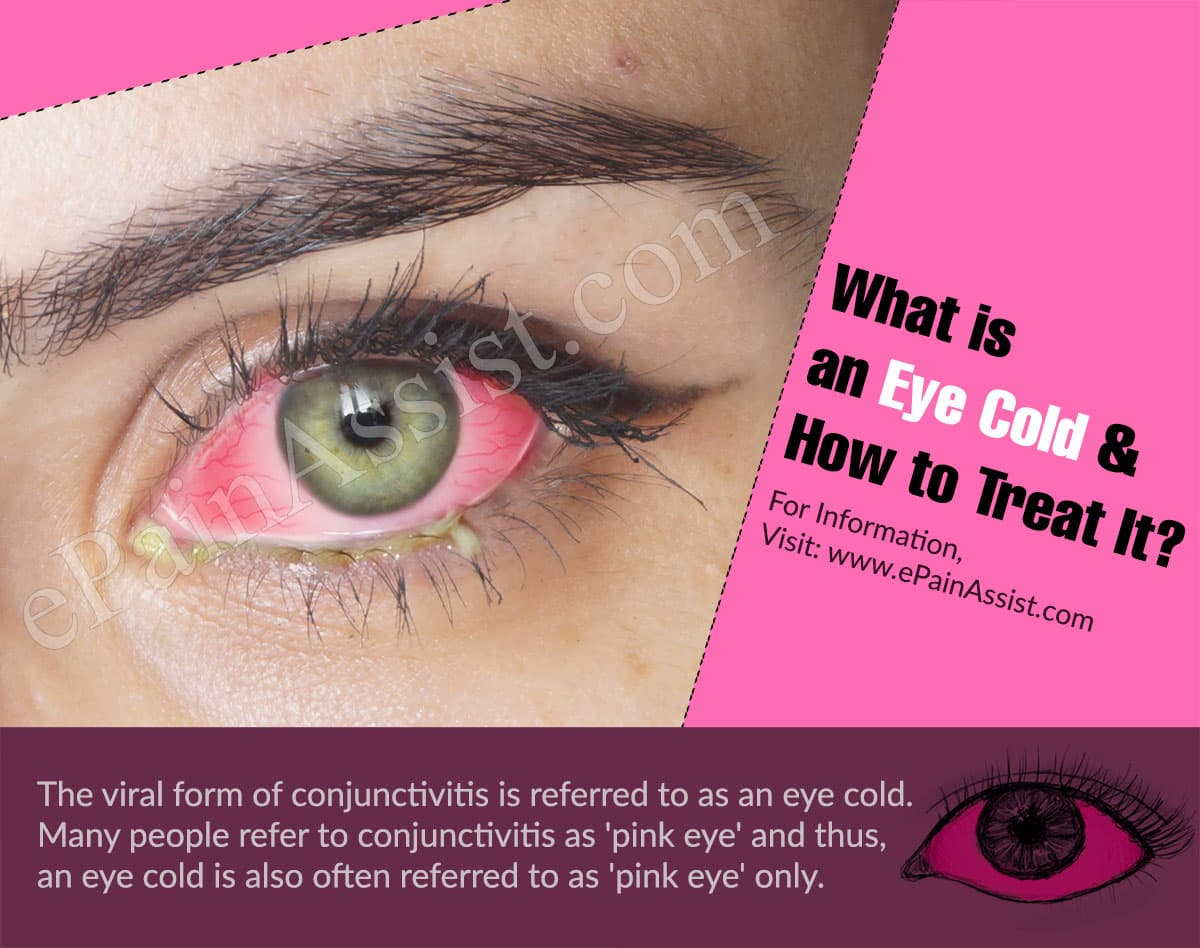 What is an Eye Cold & How to Treat It?