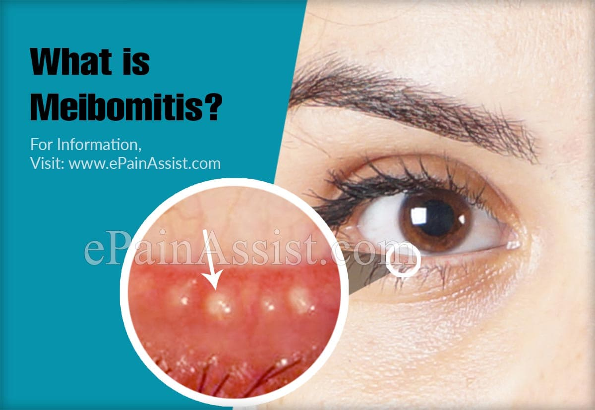 What is Meibomitis?