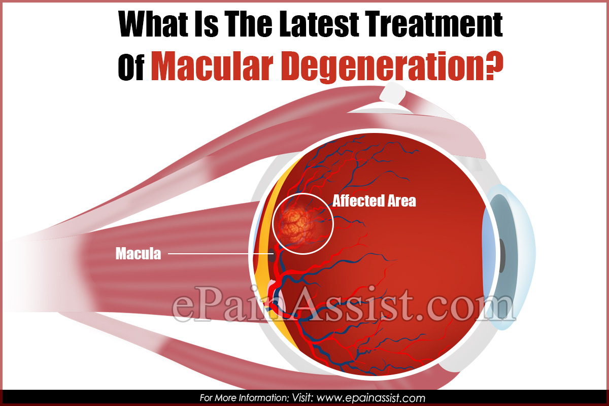 What Is The Latest Treatment Of Macular Degeneration?
