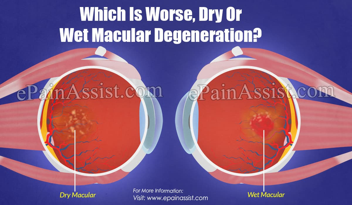 Which Is Worse, Dry Or Wet Macular Degeneration?