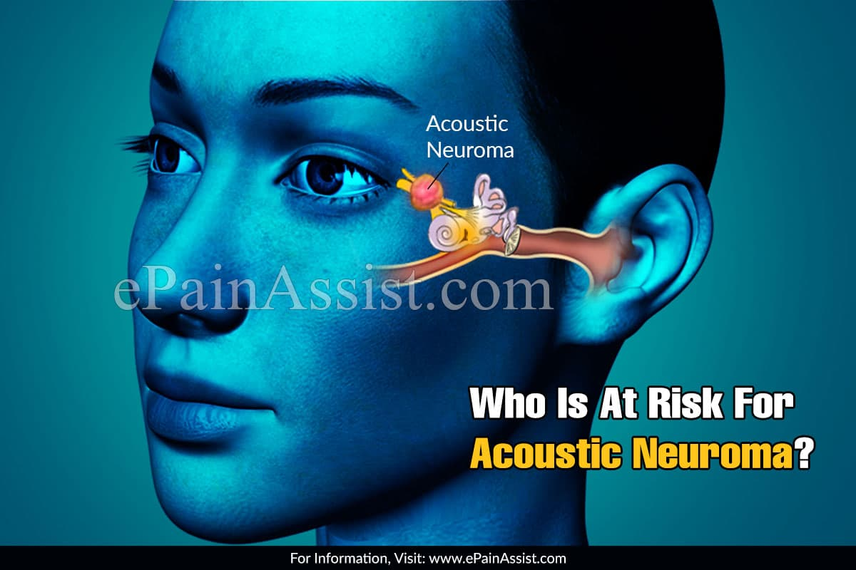 Who Is At Risk For Acoustic Neuroma?
