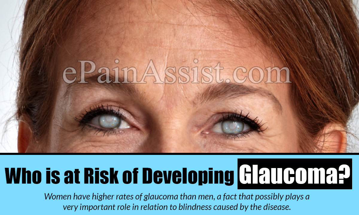Who is at Risk of Developing Glaucoma?