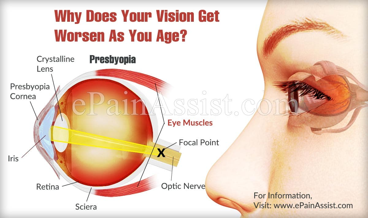 Why Does Your Vision Get Worsen As You Age?