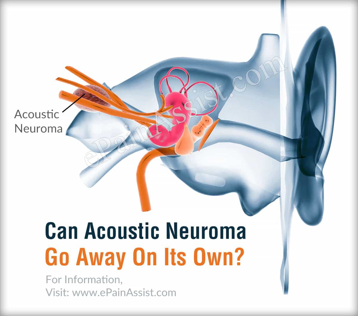 Can Acoustic Neuroma Go Away On Its Own?