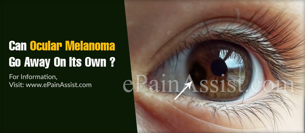 Can Ocular Melanoma Go Away On Its Own?