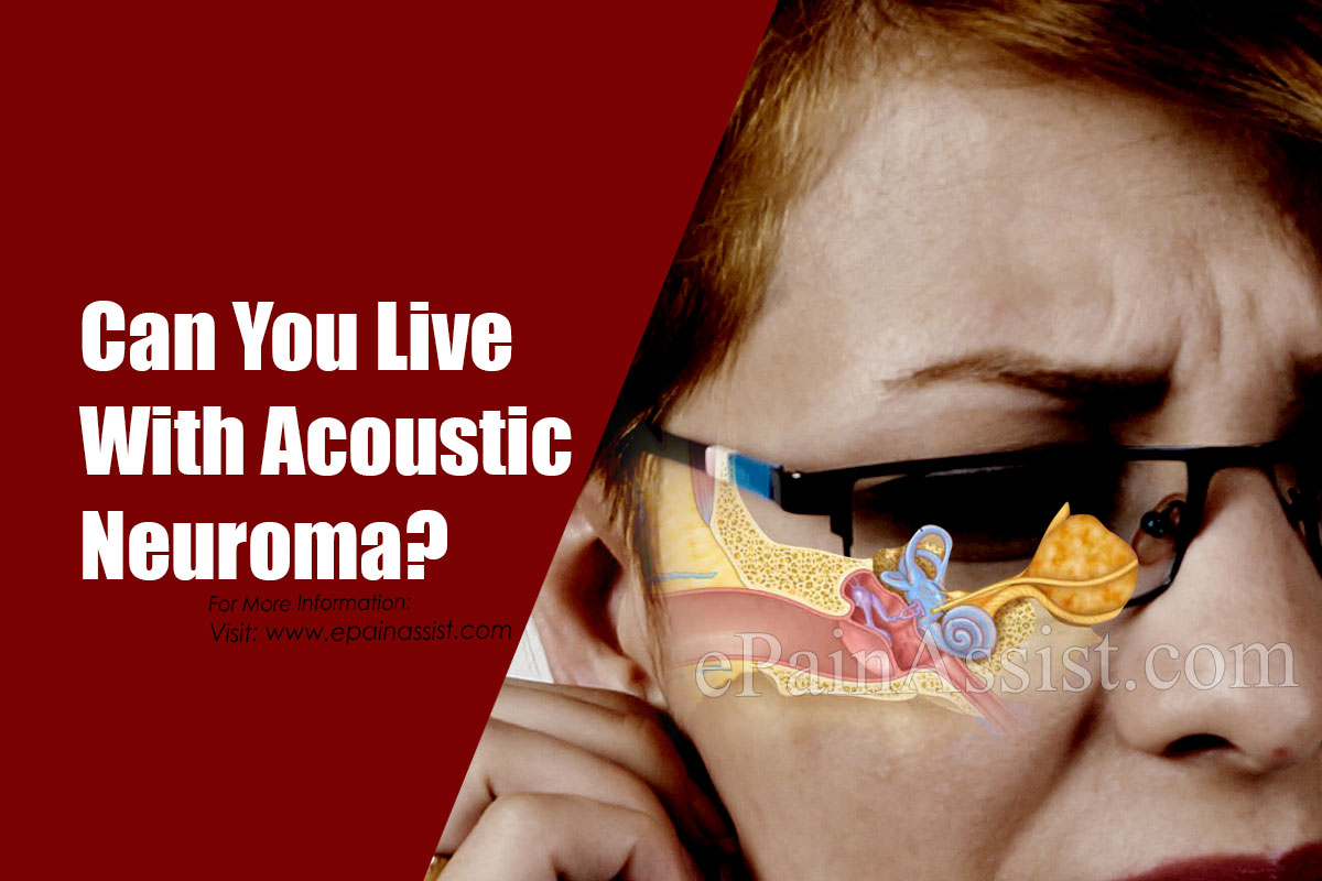 Can You Live With Acoustic Neuroma?