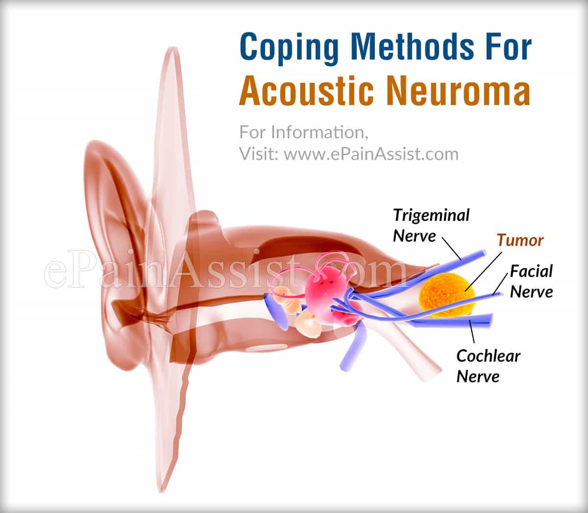 Coping Methods For Acoustic Neuroma
