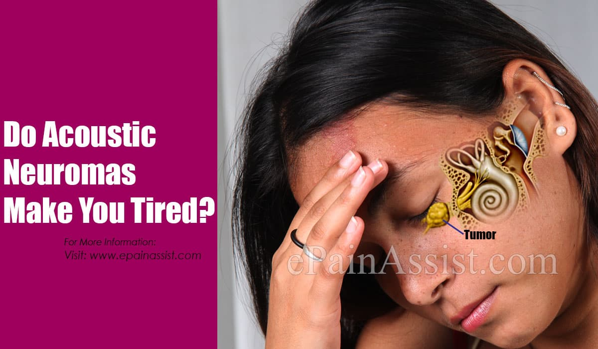 Do Acoustic Neuromas Make You Tired?