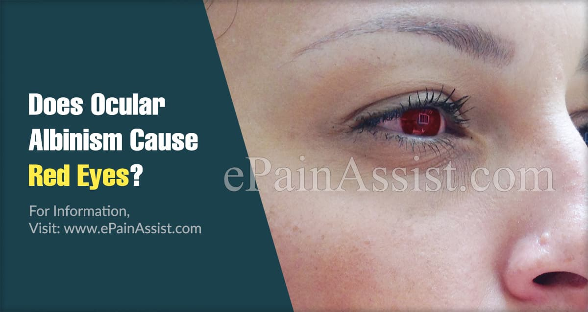 Does Ocular Albinism Cause Red Eyes?