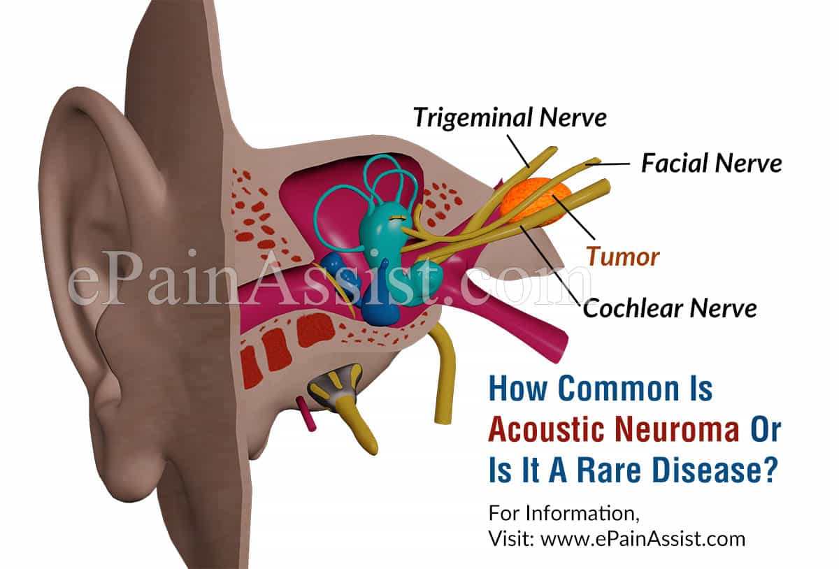 How Common Is Acoustic Neuroma Or Is It A Rare Disease?