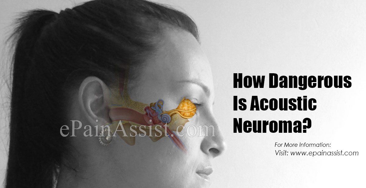 How Dangerous Is Acoustic Neuroma?