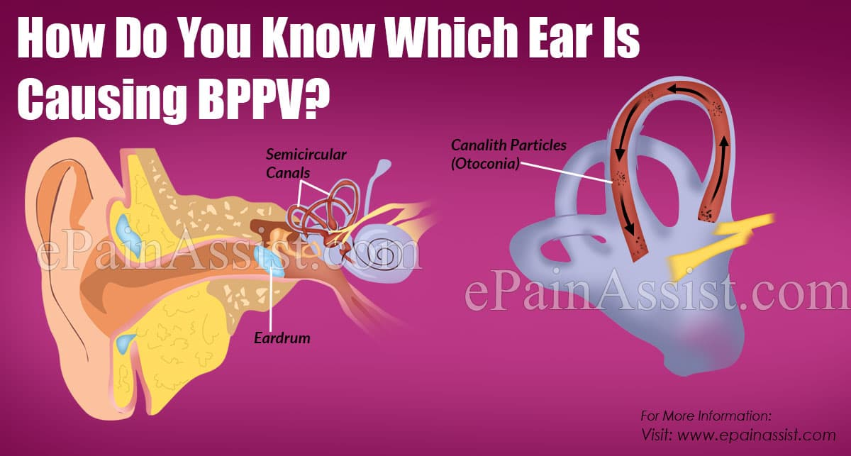 How Do You Know Which Ear Is Causing BPPV?
