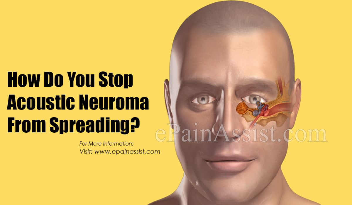 How Do You Stop Acoustic Neuroma From Spreading?
