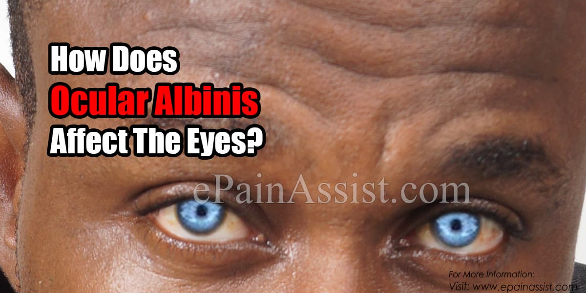 How Does Ocular Albinism Affect The Eyes?