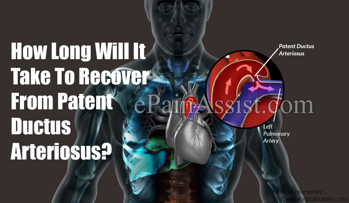How Long Will It Take To Recover From Patent Ductus Arteriosus?
