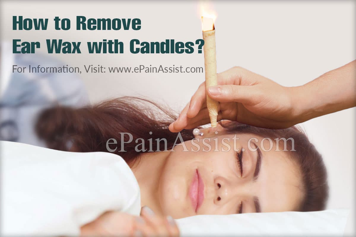 How to Remove Ear Wax with Candles?