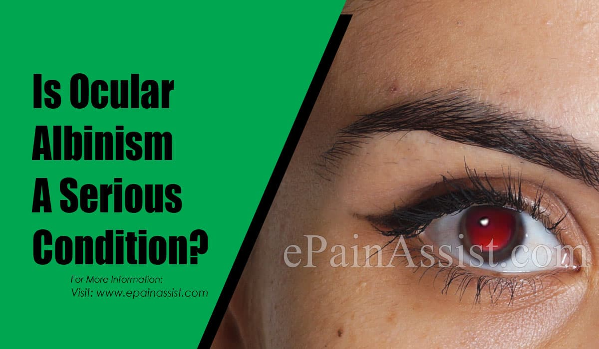 Is Ocular Albinism A Serious Condition?