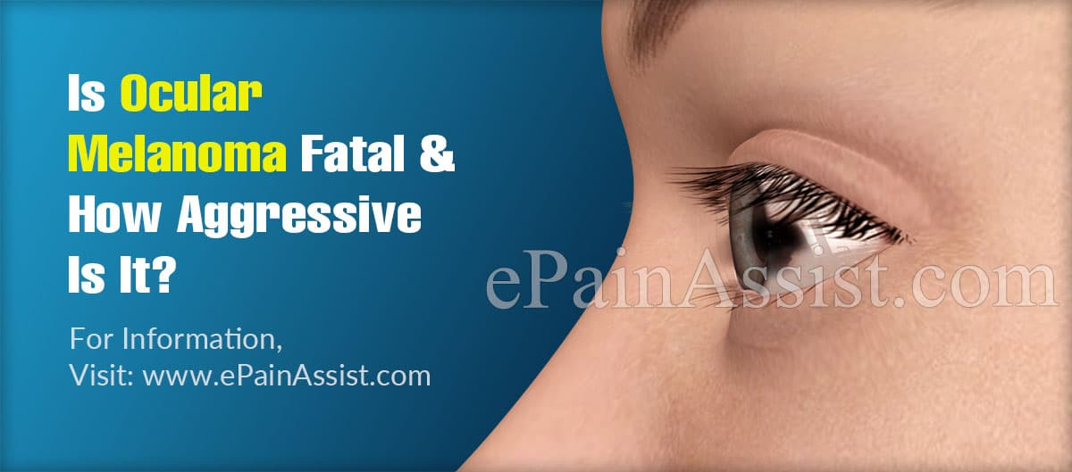 Is Ocular Melanoma Fatal & How Aggressive Is It?