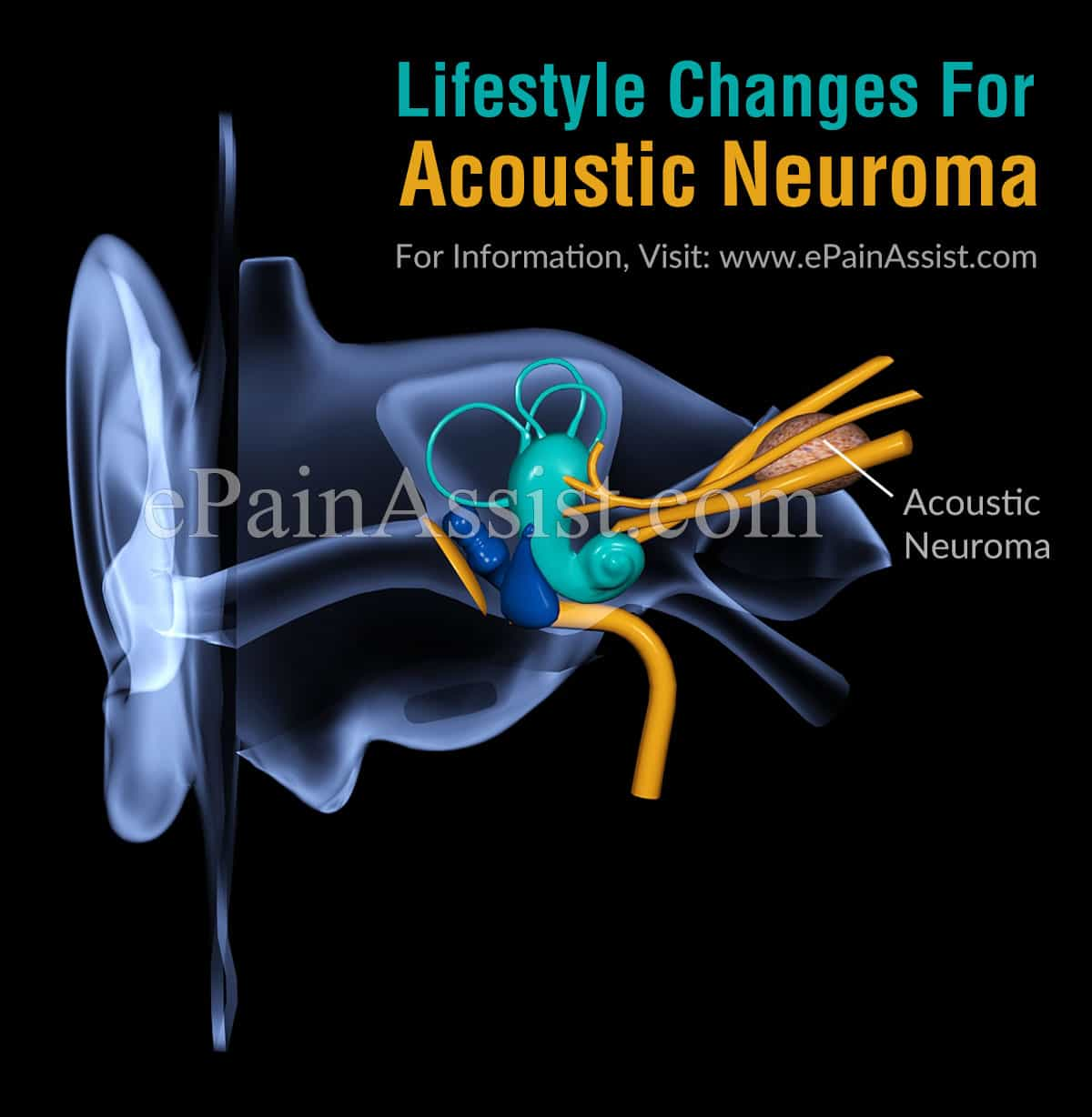 Lifestyle Changes For Acoustic Neuroma