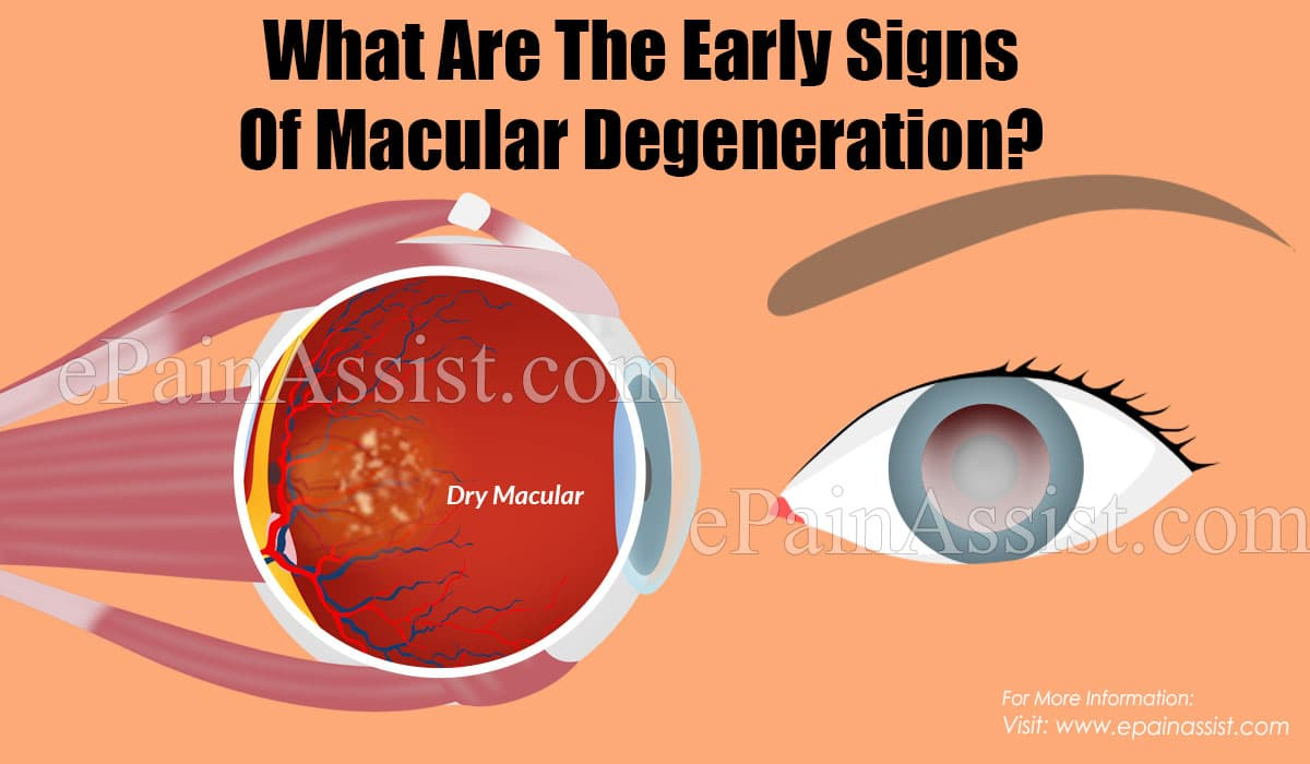 What Are The Early Signs Of Macular Degeneration?