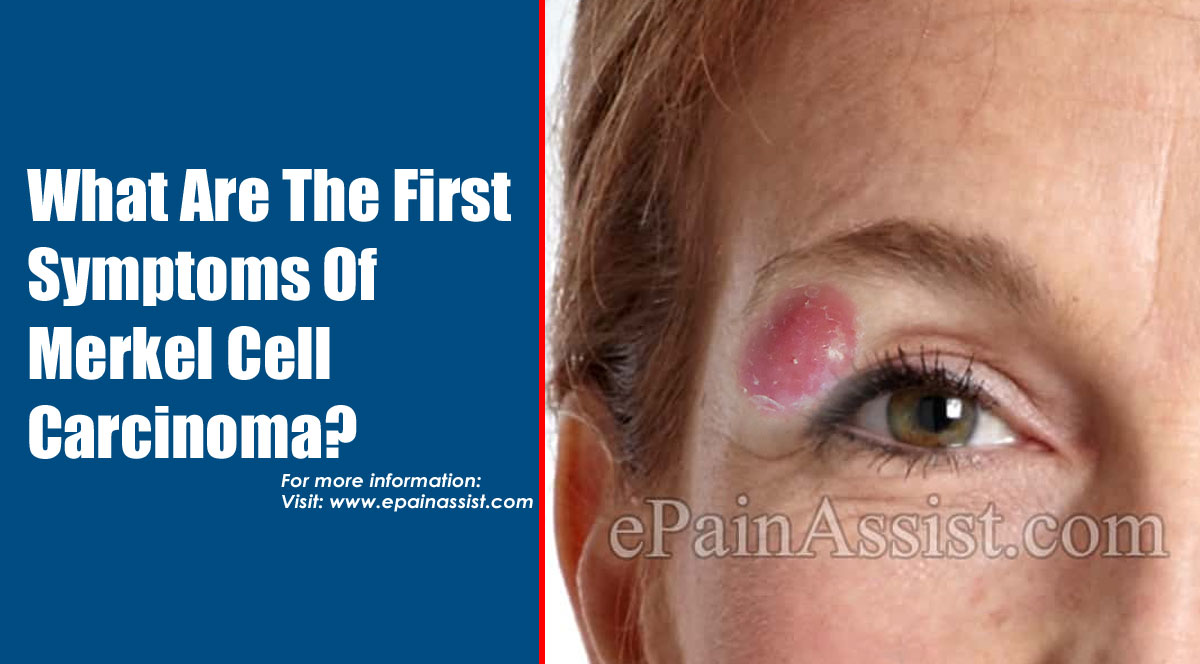 What Are The First Symptoms Of Merkel Cell Carcinoma?