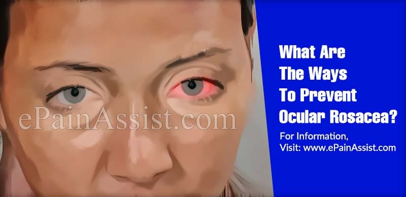 What Are The Ways To Prevent Ocular Rosacea?