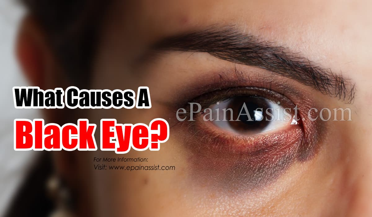 What Causes A Black Eye?