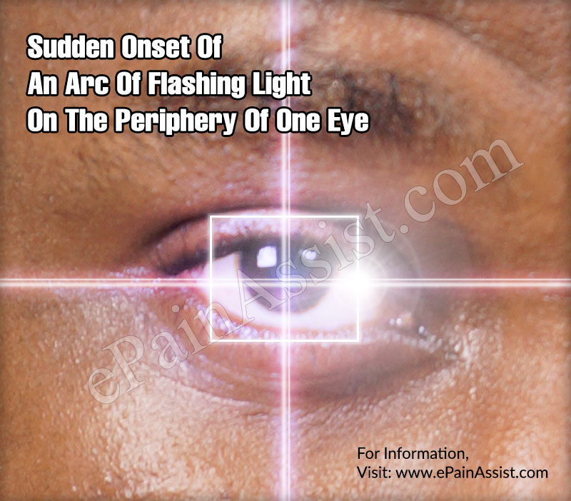 Sudden Onset Of An Arc Of Flashing Light On The Periphery Of One Eye