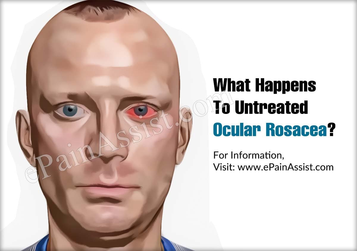 What Happens To Untreated Ocular Rosacea?