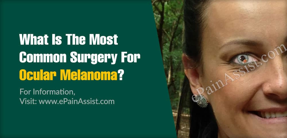What Is The Most Common Surgery For Ocular Melanoma?