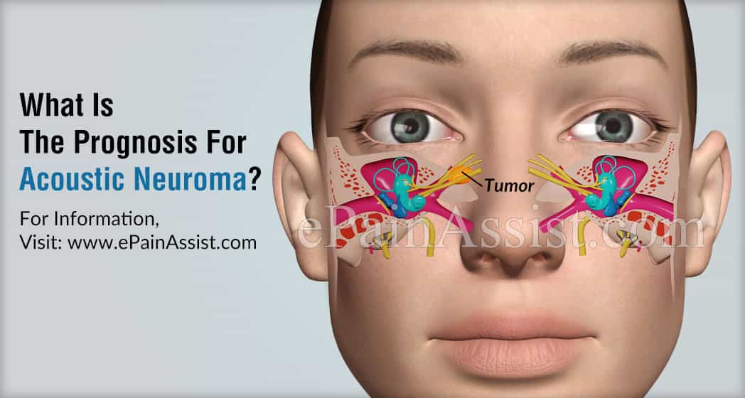 What Is The Prognosis For Acoustic Neuroma?