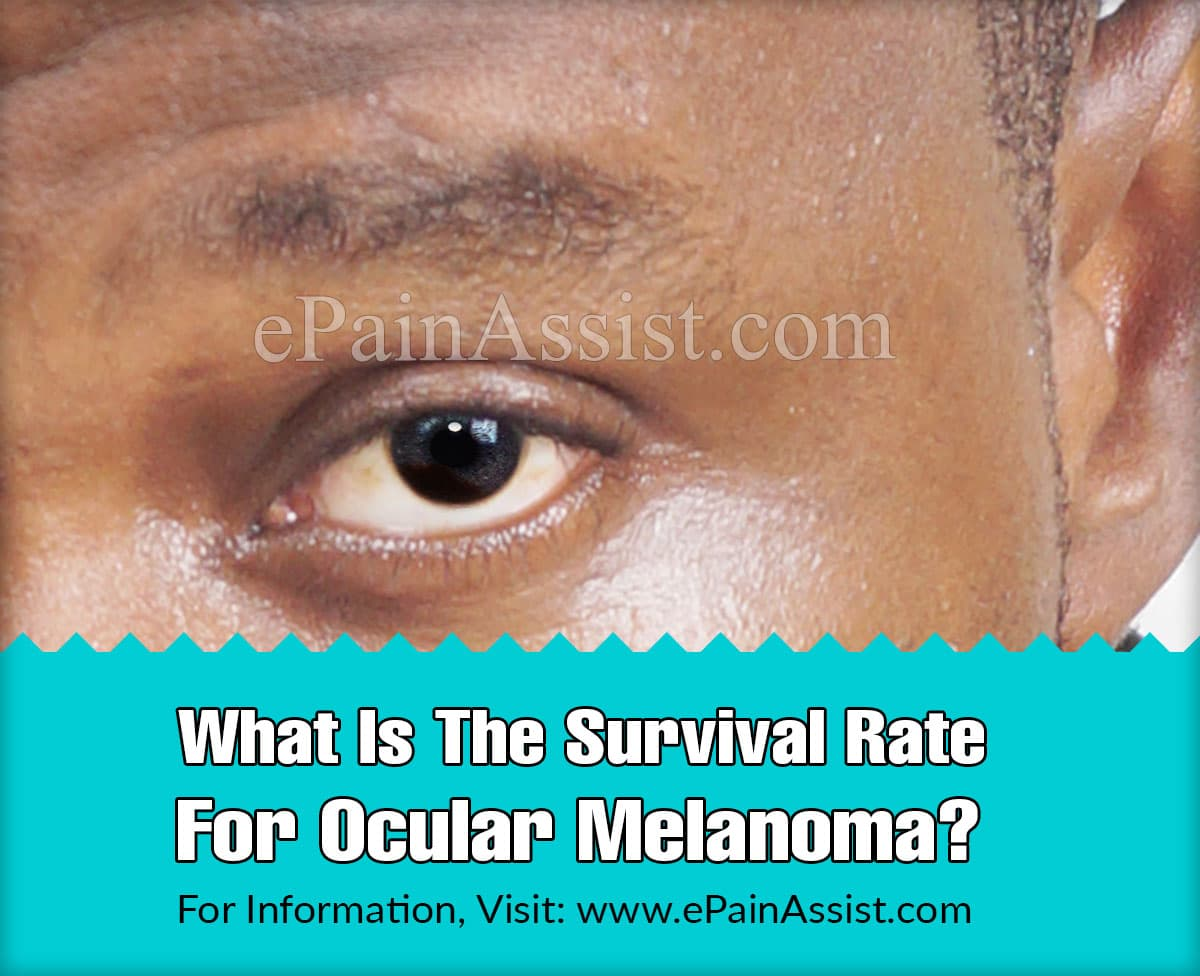 What Is The Survival Rate For Ocular Melanoma?