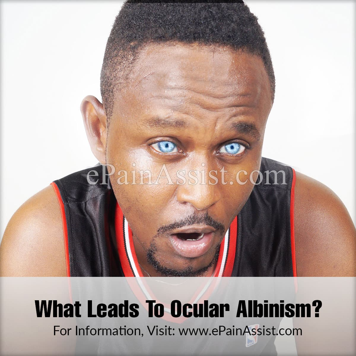 What Leads To Ocular Albinism?