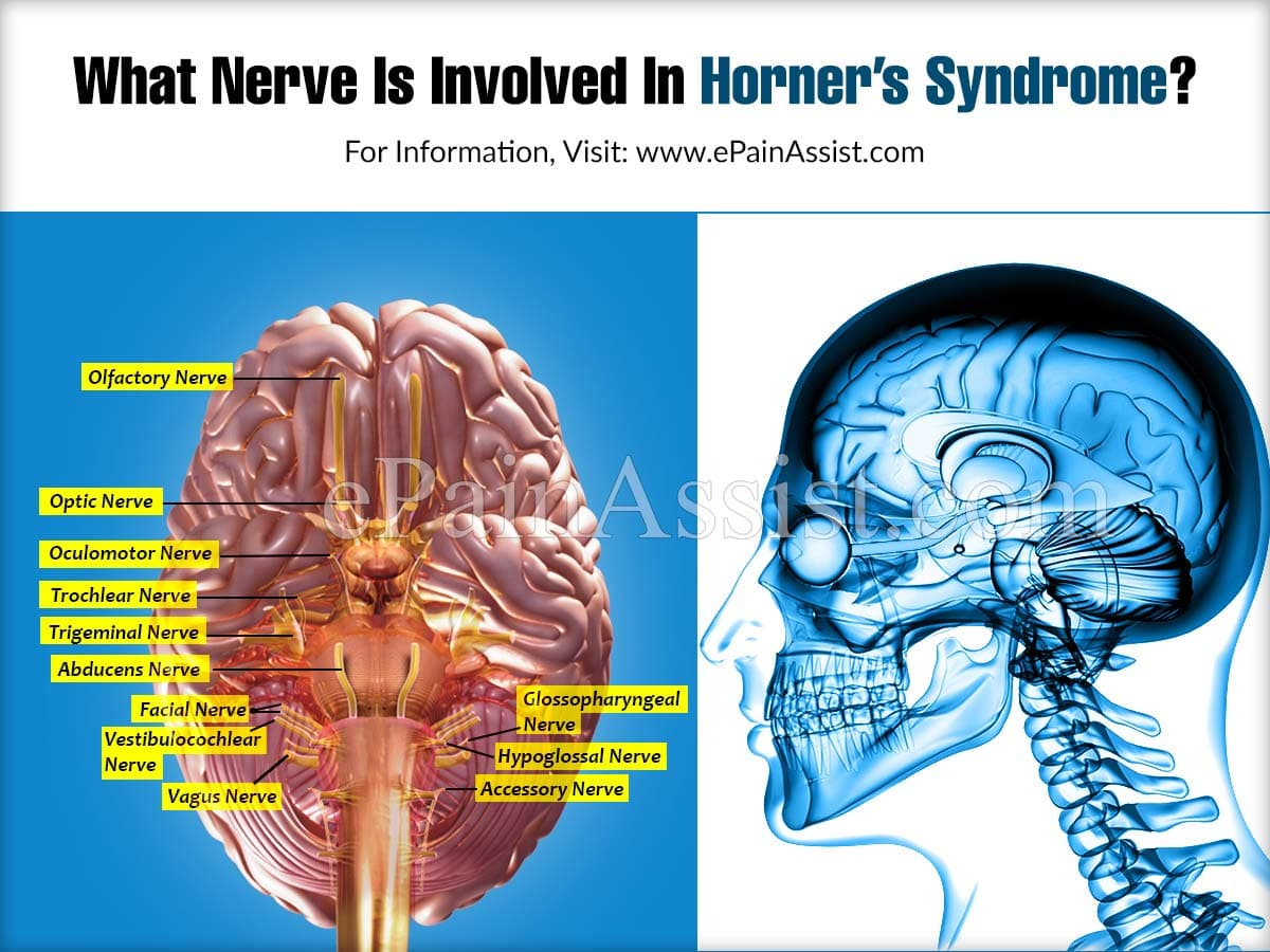 What Nerve Is Involved In Horner's Syndrome?