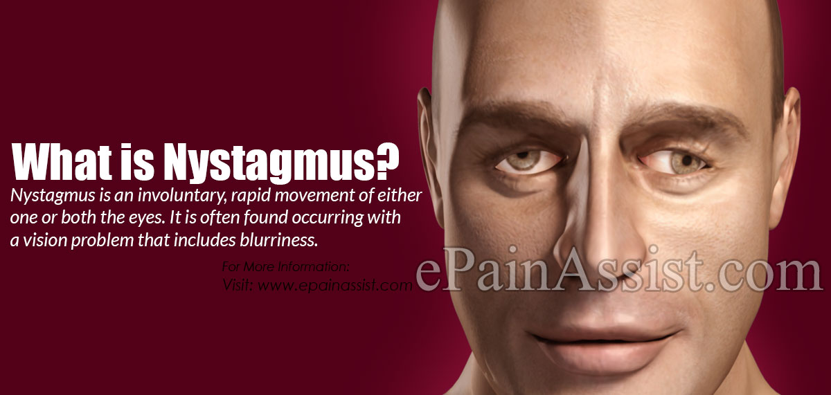 What is Nystagmus?