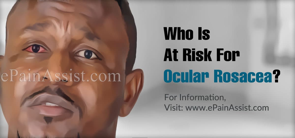 Who Is At Risk For Ocular Rosacea?