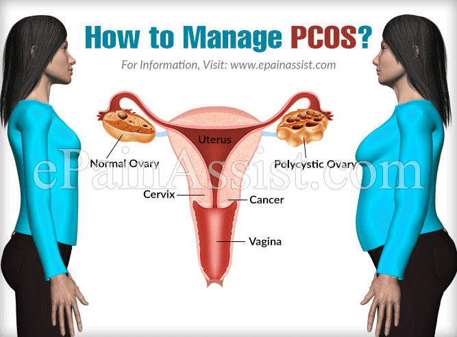 How to Manage PCOS?