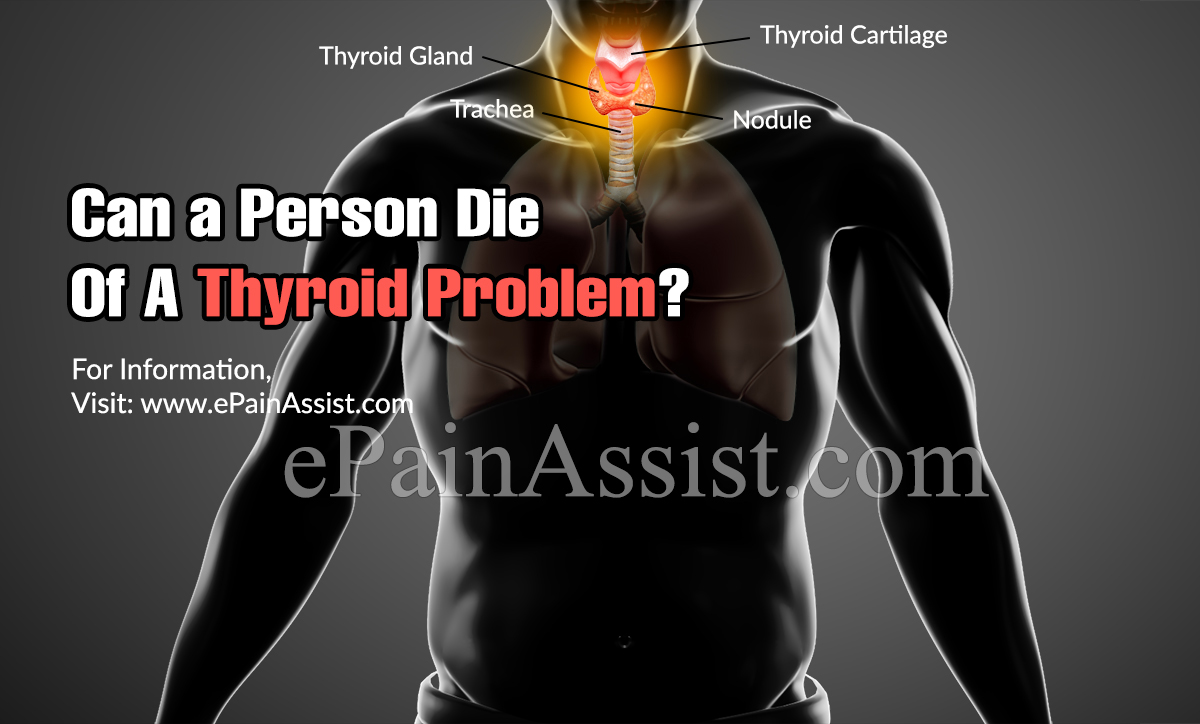 Can a Person Die Of A Thyroid Problem?