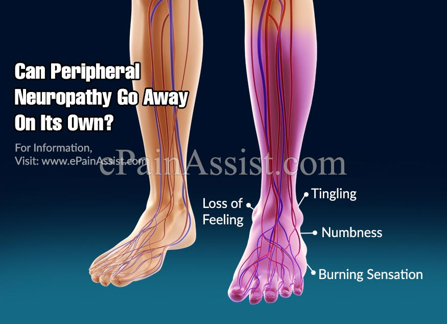 Can Peripheral Neuropathy Go Away On Its Own?