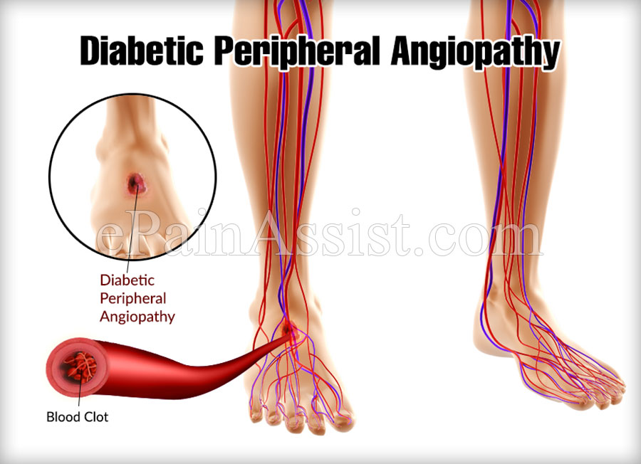 Diabetic Peripheral Angiopathy